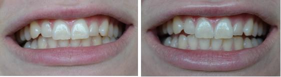 hvidere tænder